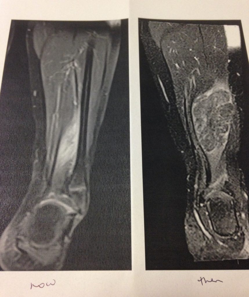 Before and after scans of Ruby's legs